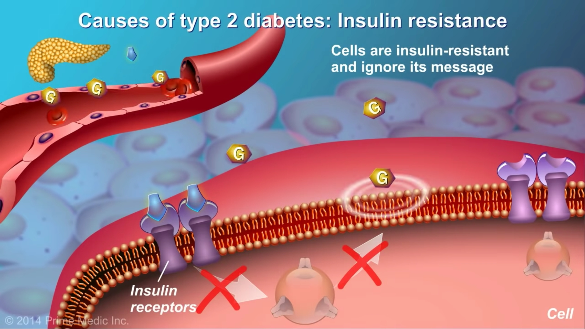 cells are insulin type 2 diabetes high blood sugar