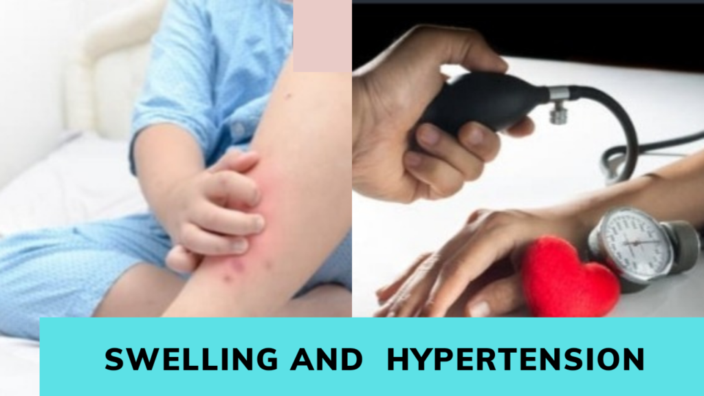 hypertension leads to kidney failure